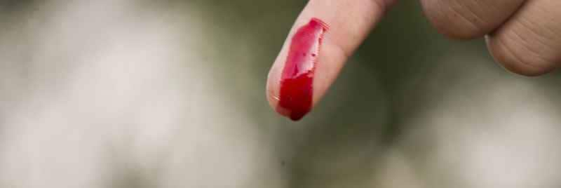 Blood dripping off a finger, about to create blood stains.